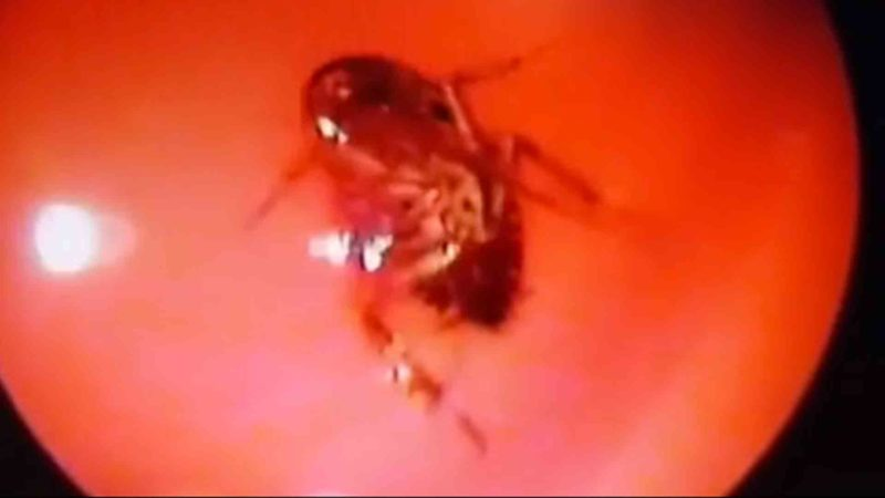 Live Cockroach Removed From Woman's Head