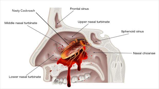 Cockroach Inside Nasal Cavity