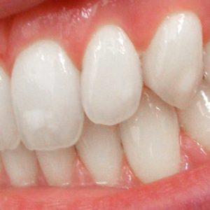 Canadian Teen Dies in Bizarre Dental Tragedy