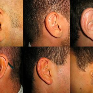 Forget Facial Recognition! Your Ear Is Your New I.D.
