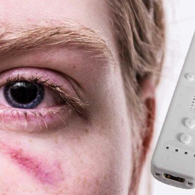 Nintendo Wii Injury